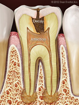 Root Canal Therapy in Portland, OR