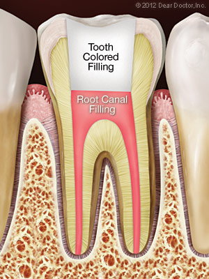 Tooth after root canal treatment | Dentist Evans GA