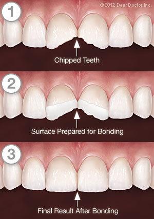 Tooth Bonding Process in Manassas VA