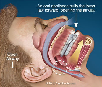 Oral Appliance Therapy in North Muskegon, MI