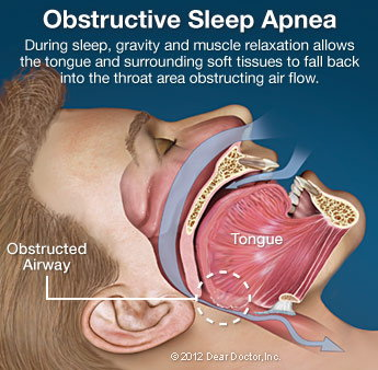Obstructive Sleep Apnea.