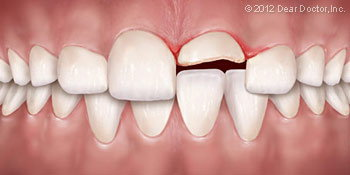 Chipped tooth dental emergency Elizabeth/Freehold