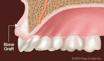 Bone Grafting Appleton Wi Dentist Dental Center The Valley Ltd