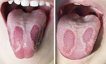 Geographic Tongue.