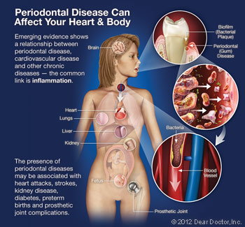 Gum disease can affect your heart and body.