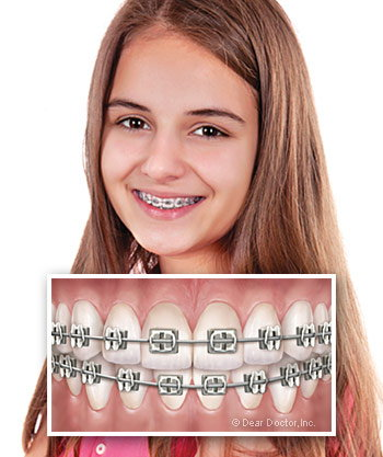 Traditional Metal Braces.