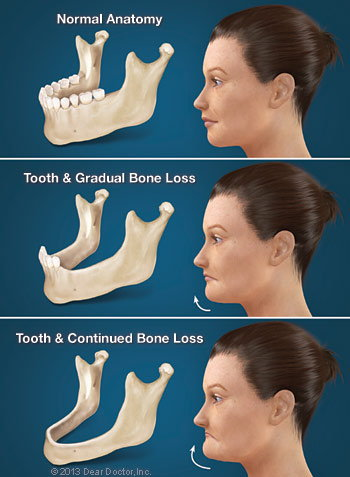 Consequences of Tooth Loss.