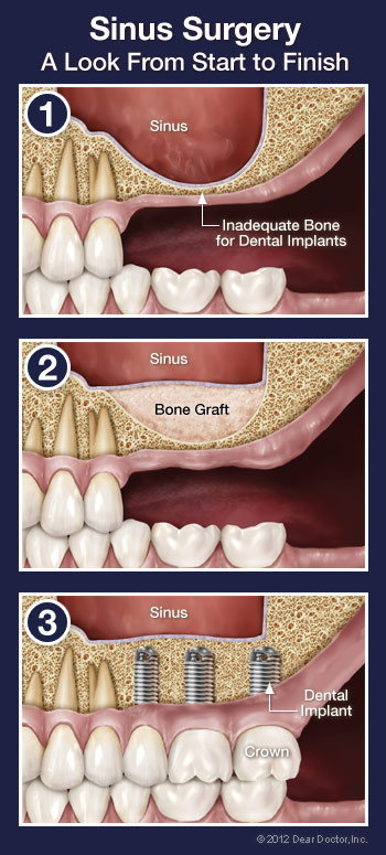 Sinus surgery step by step.