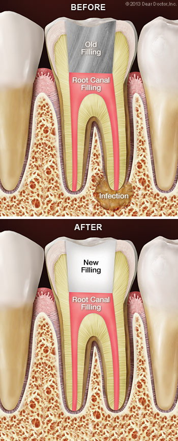 Root canal retreatment.