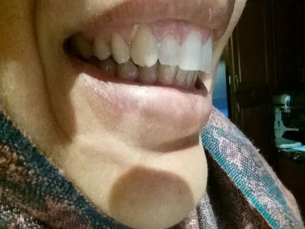 adult cosmetic braces corrected front teeth