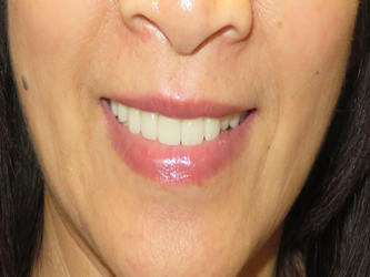 complete smile makeover. Patient loves to smile now!