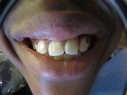 Bonding Placed on teeth