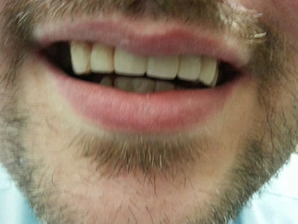 dental bridge placed