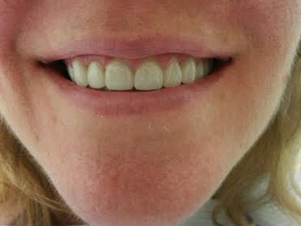 smile makeover with all porcelain crowns