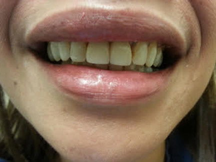 crowns placed on two front teeth