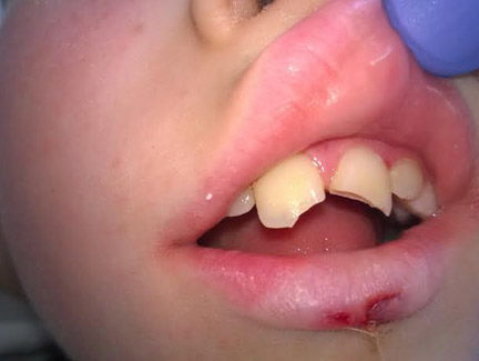 Teeth fractured in a boating accident