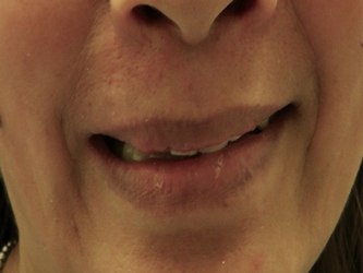 Patient did not like to smile due to front teeth