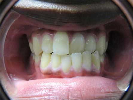 Teeth are in crossbite
