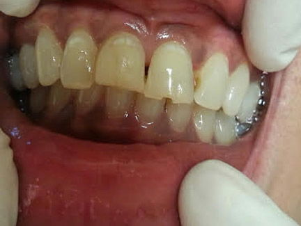 large filling was discolored and tooth broken