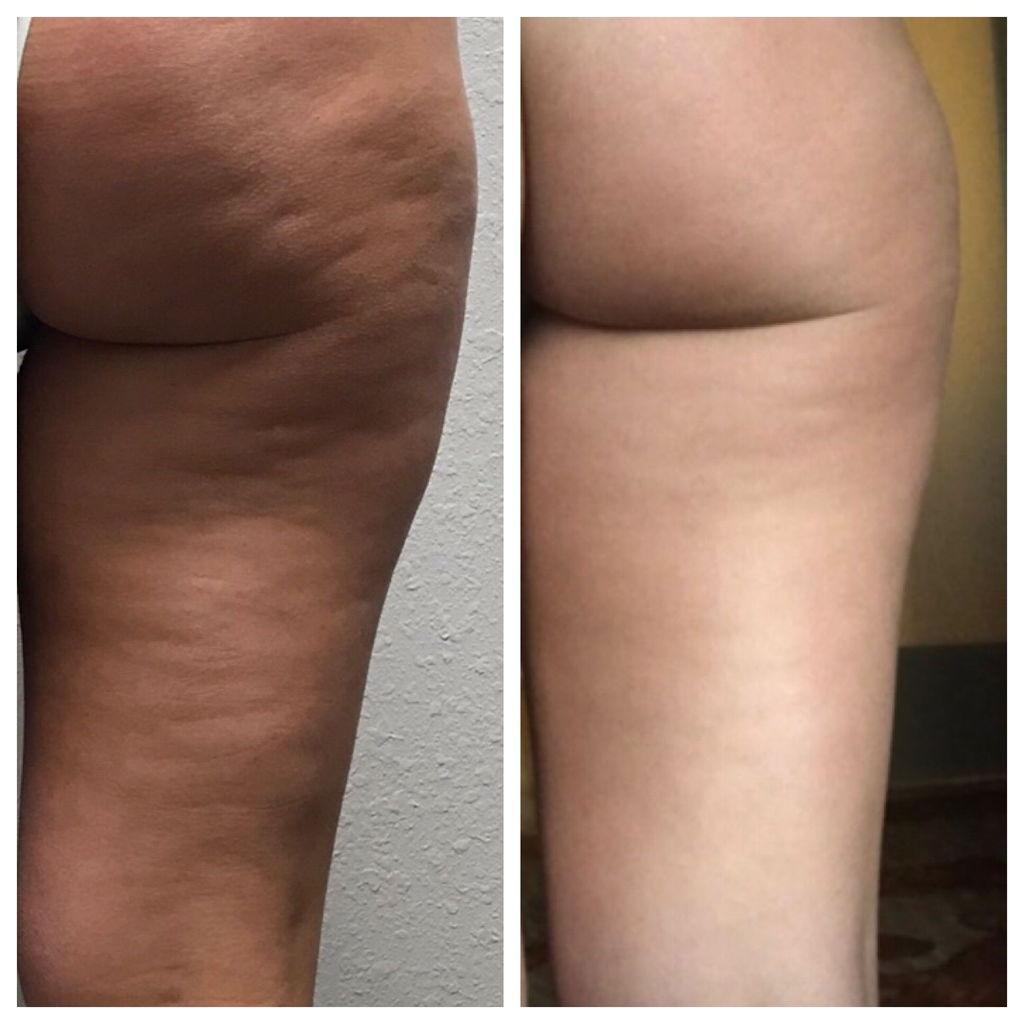 Cellulite Improvement