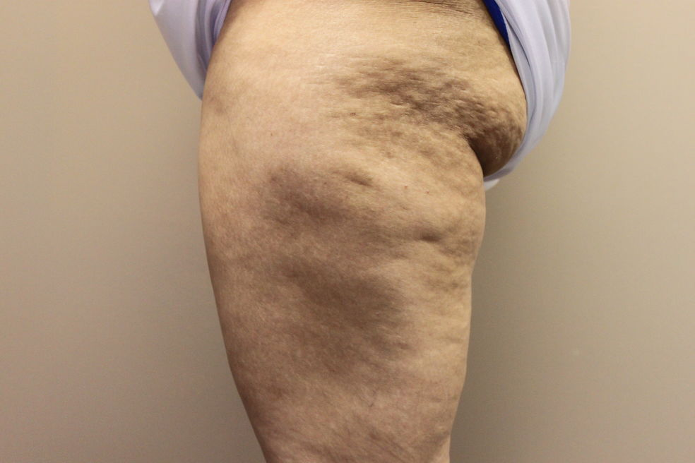 Cellulite before treatment