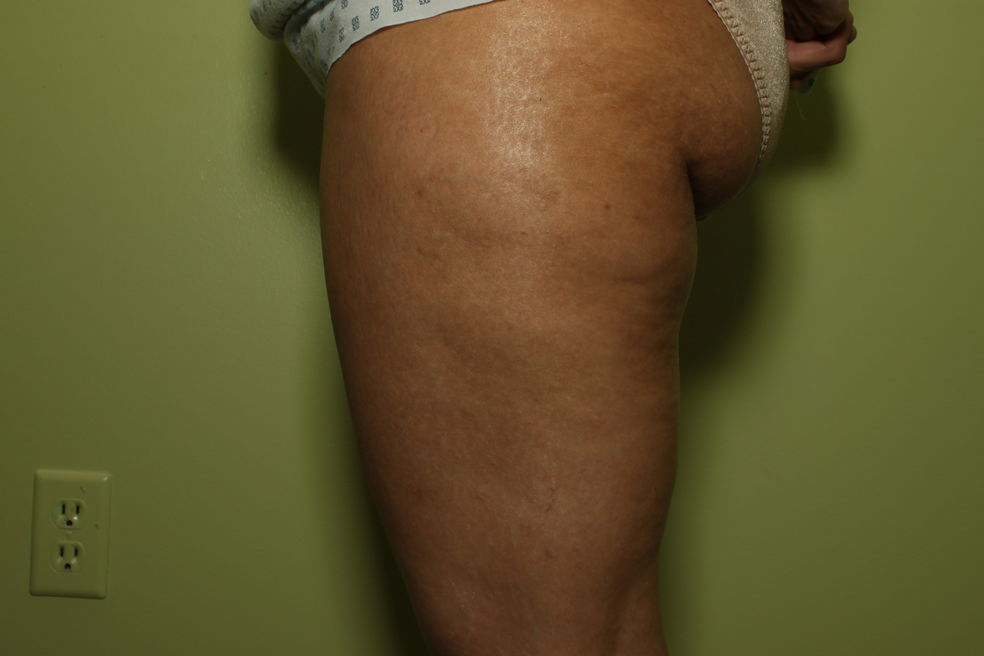 Cellulite after alma treatment