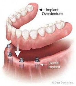 Implant_denture2
