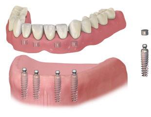 implant_denture1