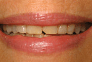 Before: Porcelain Crowns