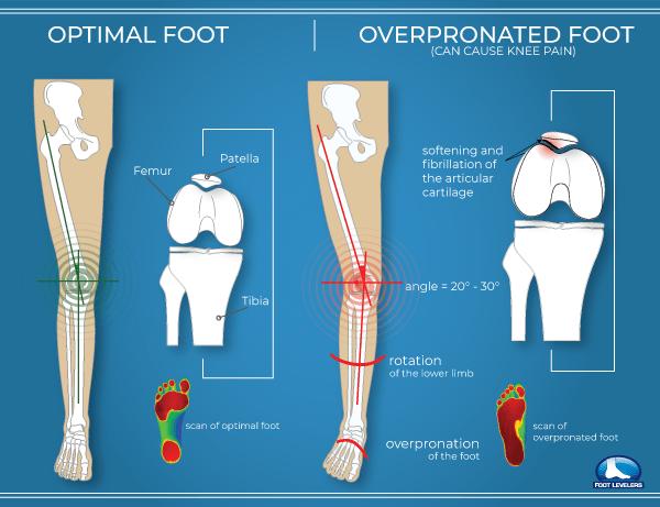 Pronation-vs-Optimal