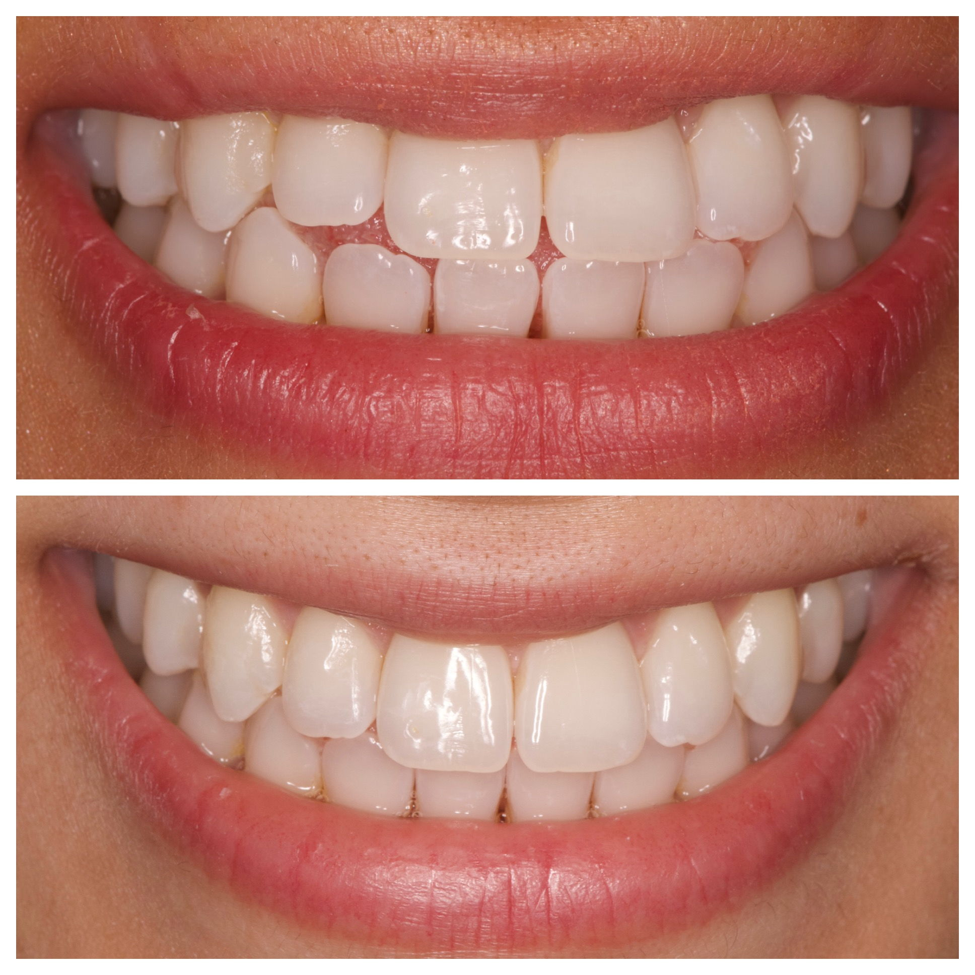 10 WEEK INVISALIGN SMILE ENHANCEMENT
