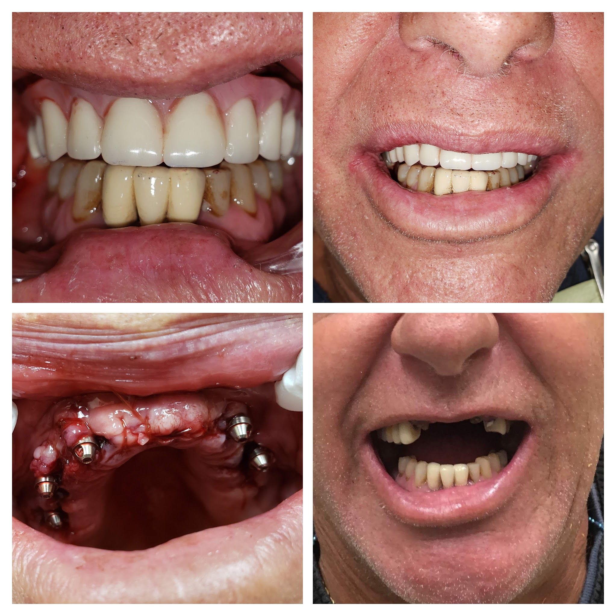 Dental-Implant_BeforeAfter3