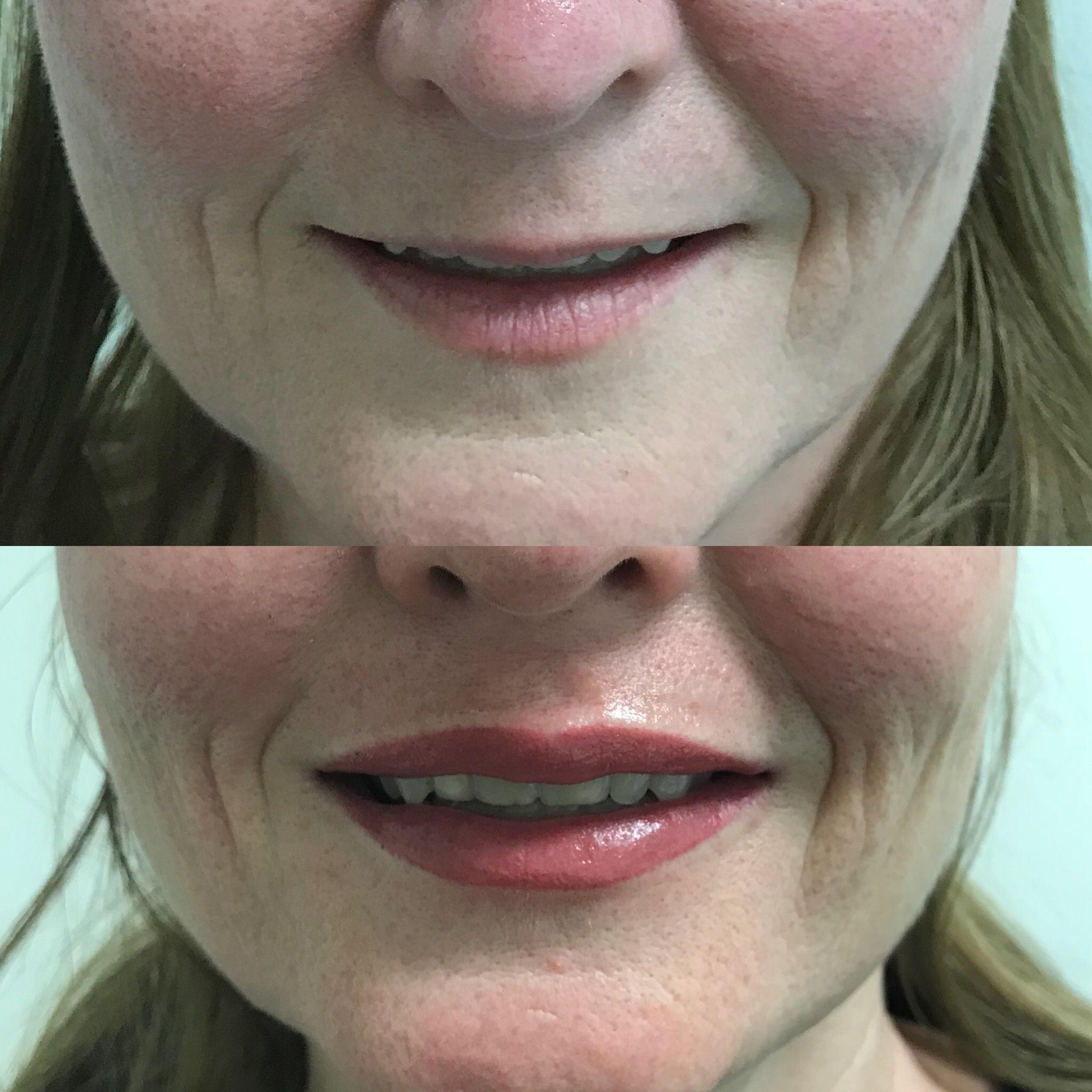 Permanent Lips3