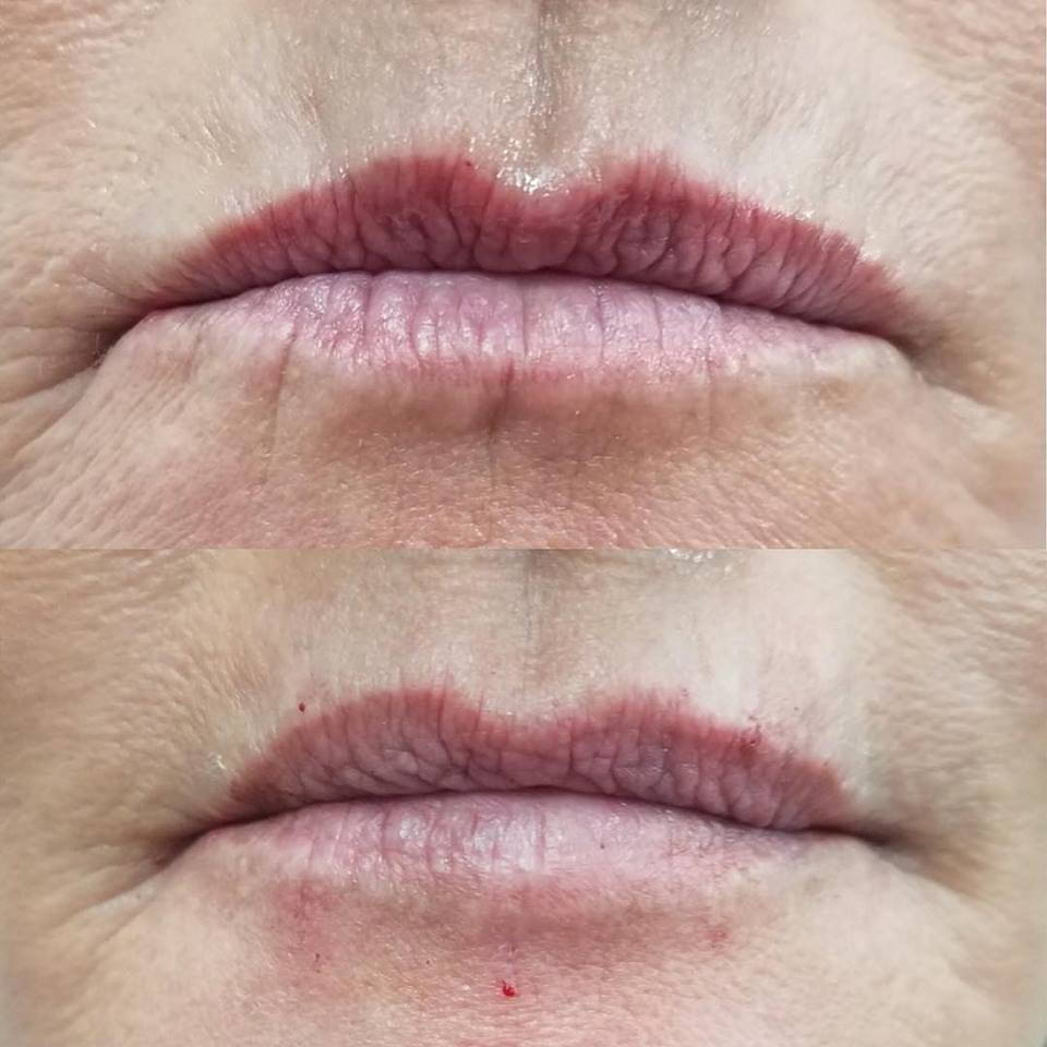 Dermal Fillers for upper lip lines