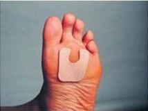 u-shaped callus pad