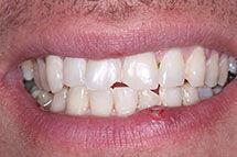 Before Bonding Repair of Teeth Fracture