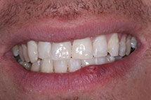 After Bonding Repair of Teeth Fracture