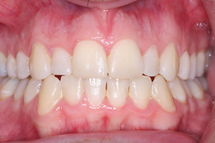 After Invisalign Plus Cosmetic Bonding