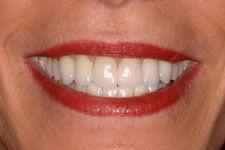 Female Smile Makeover