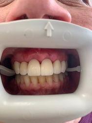 Sunday Dental