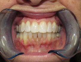 Invisalign12_after_1