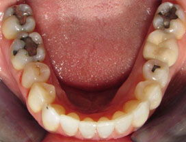 Invisalign12_after_3