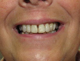 Invisalign13_2_after_1