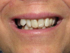 Invisalign13_2before_1