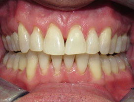 Invisalign13_after_1