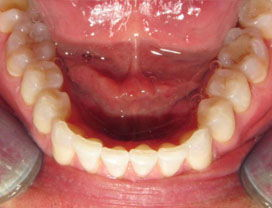 Invisalign13_after_3