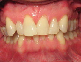 Invisalign13_before_1