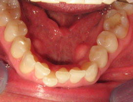 Invisalign13_before_3