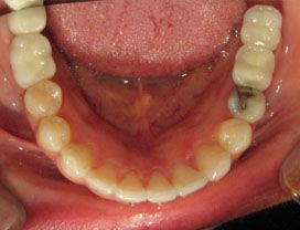 Invisalign24_After_3