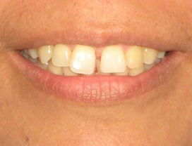 Invisalign24_Before_1